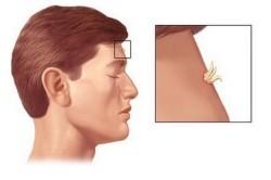Наличие бородавки на лице