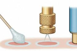 Схема обработки бородавки жидким азотом