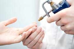 Процесс удаления бородавки жидким азотом