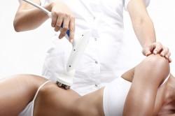 Устранение растяжек в косметологическом салоне