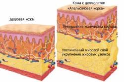 Структура целлюлита
