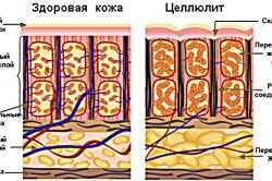 Строение кожи в норме и при целлюлите