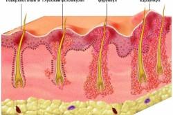 Виды фурункулеза