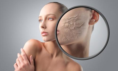 Гликолевый пилинг для красоты лица