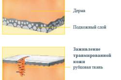 Структура здоровой и поврежденной кожи