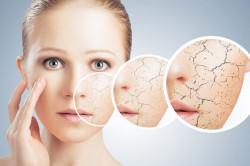 Пересыхание кожи лица