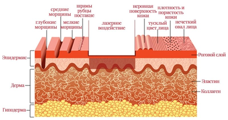 Растяжки на теле схема
