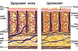 Здоровая кожа и целлюлит