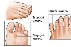 Виды мозолей на ногах