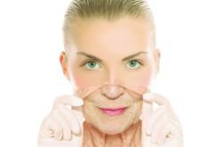 Удаление старой кожи пилингом