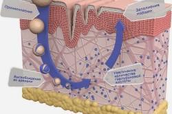 Действие  гиалуроновой кислоты  в коже после инъекции