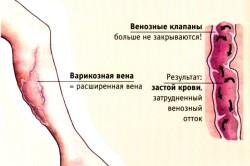 Варикоз - противопоказание к эпиляции воском