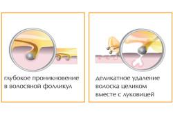 Этапы процедуры эпиляции