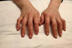 Загрязнение кожи рук