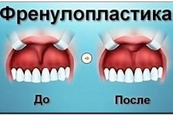 Ферунопластика