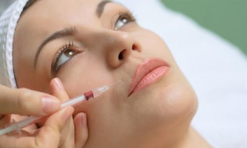 Введение биополимерного геля в губы