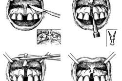 Принцип операции при низком положении уздечки