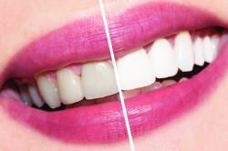 Отбеливание зубов при помощи масла из виноградных косточек