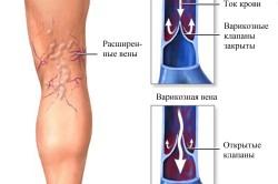 Противопоказания к проведению эпиляции при варикозе