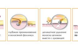 Схема процедуры шугаринга