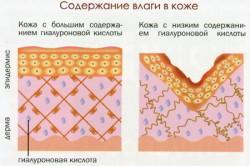 Содержание гиалуроновой кислоты в коже