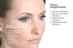 Схема нитевой коррекции лица
