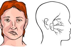 Искажение лица после ботоксных инъекций