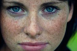 Повышенная пигментация кожи
