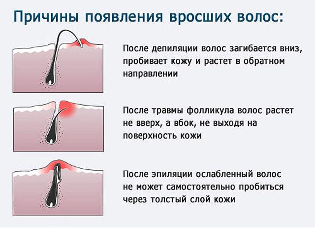 салициловая мазь для волос