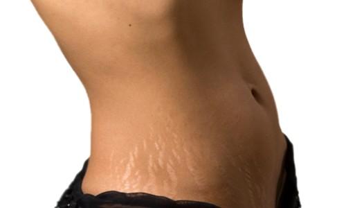 Проблема растяжек на коже