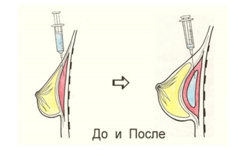 как увеличить диаметр пениса Ингушетия