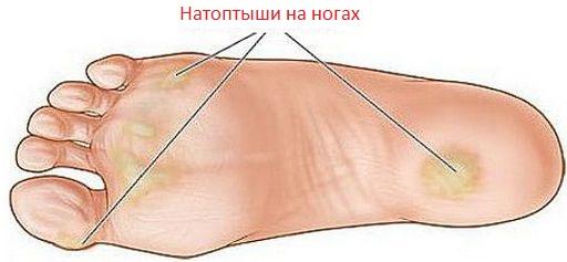 Мозоли на ногах лечение в домашних условиях