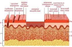 Схема лазерного удаления растяжек