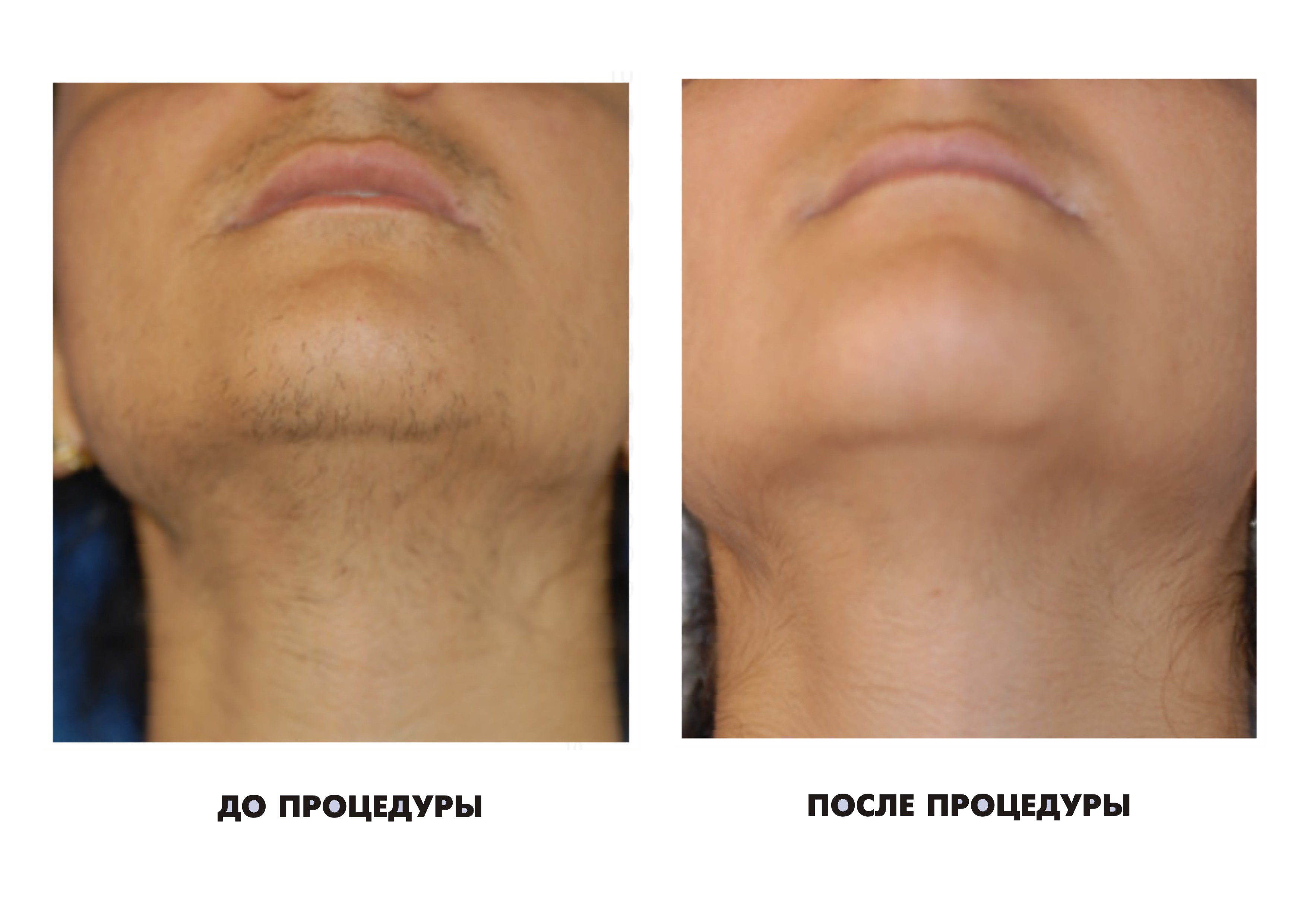 депиляция верхней губы отзывы