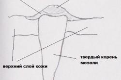Структура натоптыша
