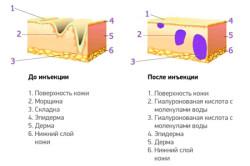 Принцип действия гиалуроновой кислоты