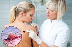 Осмотр дерматолога при невусе кожи