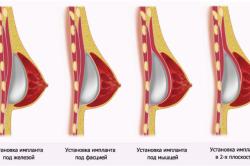 Виды установок импланта