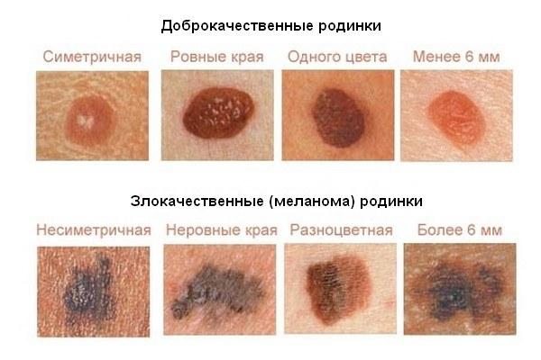 невус фото на коже