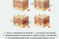 Схема использования мезонитей
