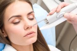 Лазерное удаление жировиков на лице