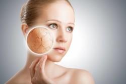 Шелушение кожи - признак возникновения пор